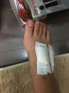 右足甲の腱鞘炎